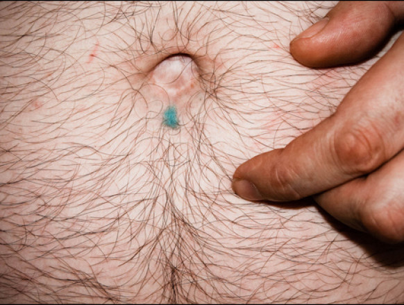omphalophobia, fear of bellybutton